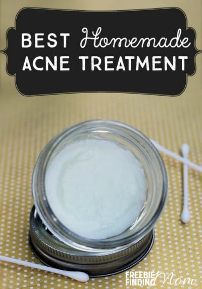 Best Homemade Acne Treatment to promote making homemade beauty products