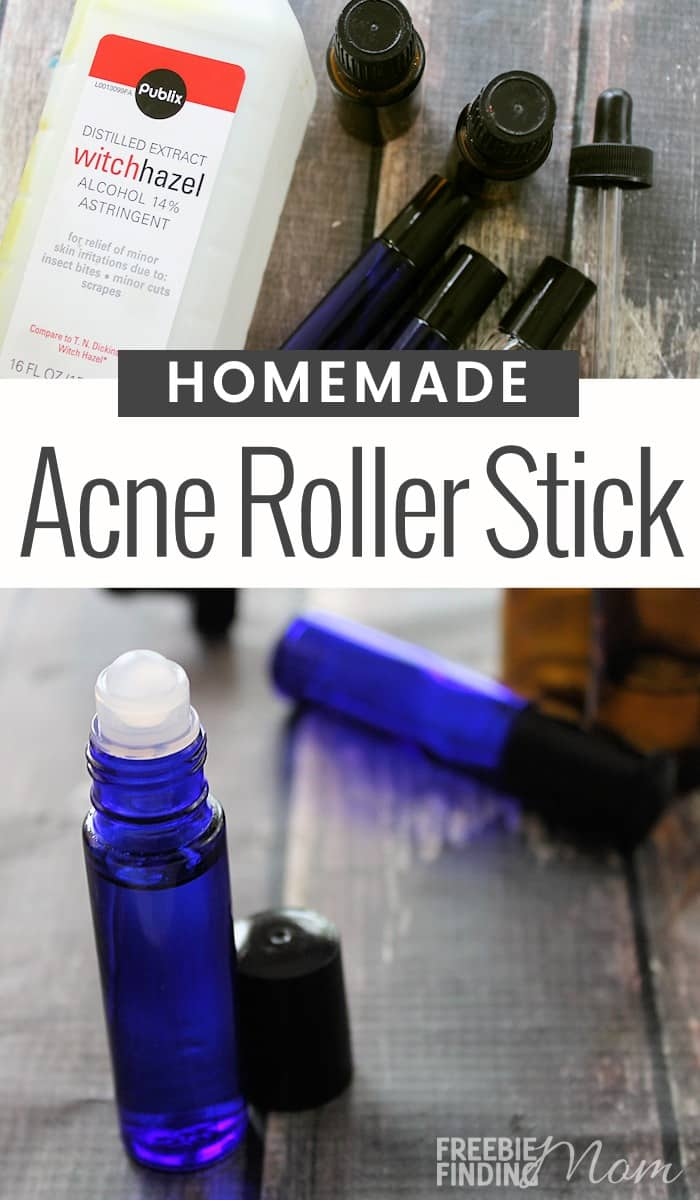 Do you suffer from acne? This 3-ingredient all-natural Homemade Acne Stick can zap zits quickly and easily. All you need is witch hazel, frankincense essential oil and melaleuca (tea tree) essential oil. These ingredients in this emergency zit stick have antibacterial properties which make them great at killing the bacteria infesting your pores. So, give this acne remedy a try today and start looking at flawless, beautiful skin tomorrow. #acneremedies #acnetreatment #acne #pimples