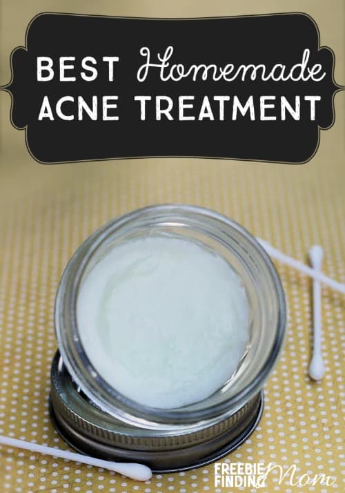 Best Homemade Acne Treatment